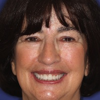 Cosmetic Dentistry in Broomall, PA
